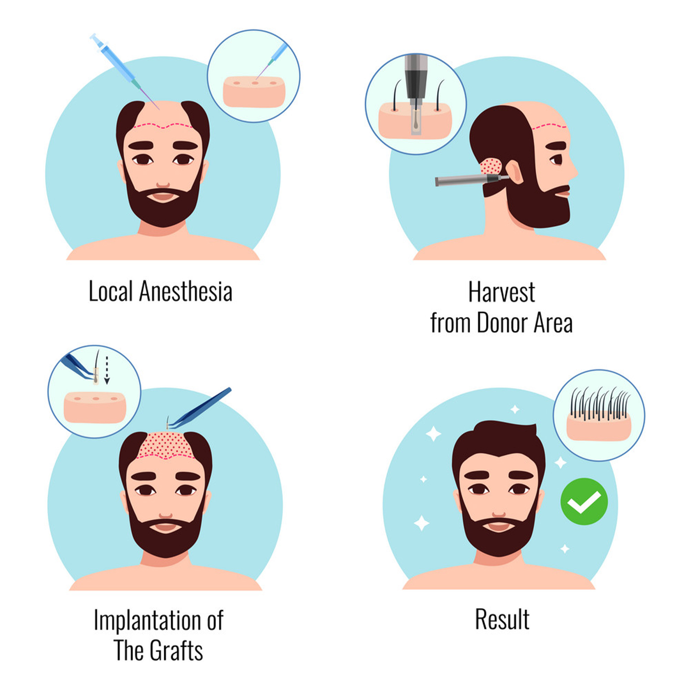 Hair Transplant Technique