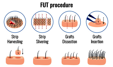 FUT hair Transplantation