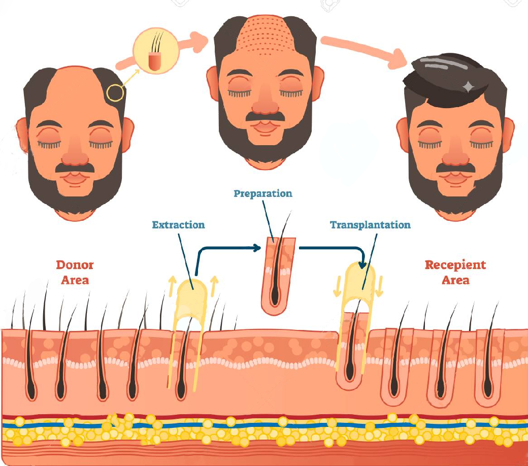 hair transplant method Vector - Dr. VJs Cosmetic Surgery & Hair Transplantation Centre