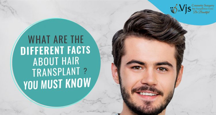 What are the different facts about hair transplant surgery that you must know?