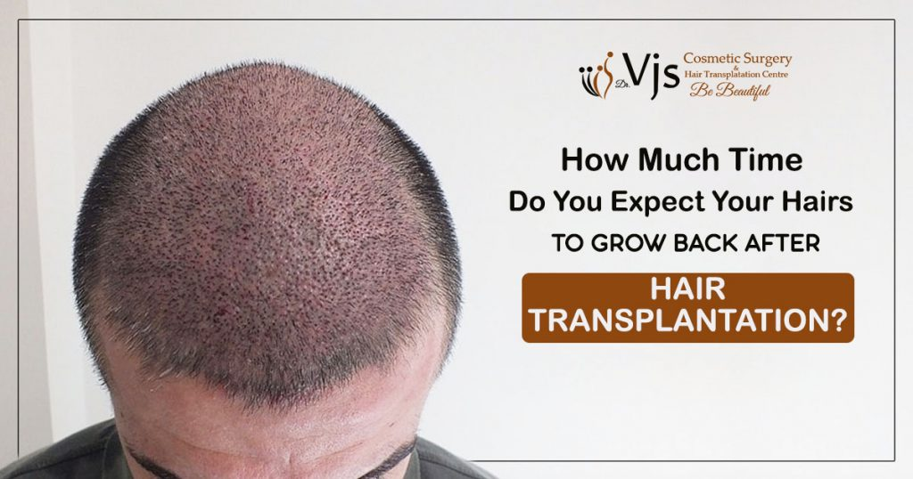 How much time do you expect your hairs to grow back after hair transplantation
