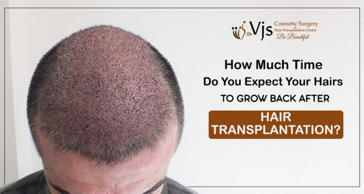 How Much Time Do You Expect Your Hairs To Grow Back After Hair Transplantation?