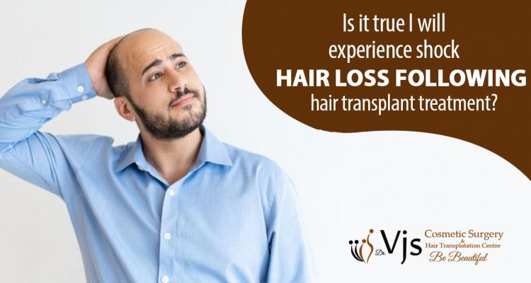 Is it true I will experience shock hair loss following hair transplant treatment?
