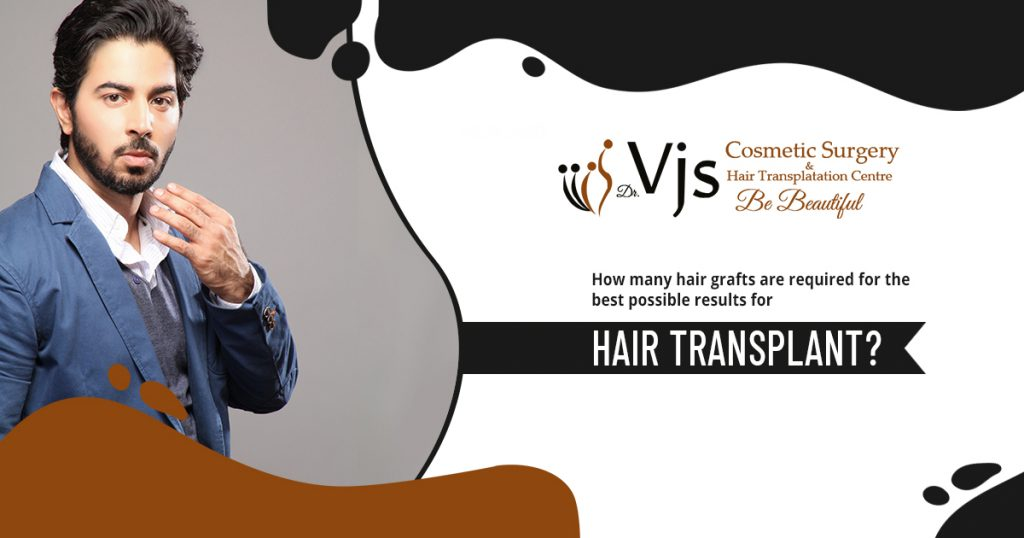How many hair grafts for hair transplant