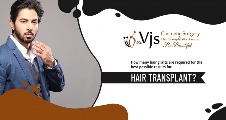 How many hair grafts are required for the best possible results for hair transplant?