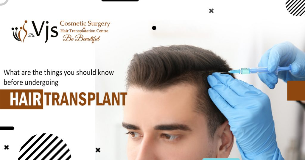 What are the things you should know before undergoing hair transplant surgery
