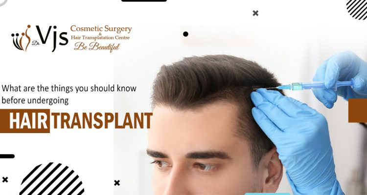 What are the things you should know before undergoing hair transplant surgery?