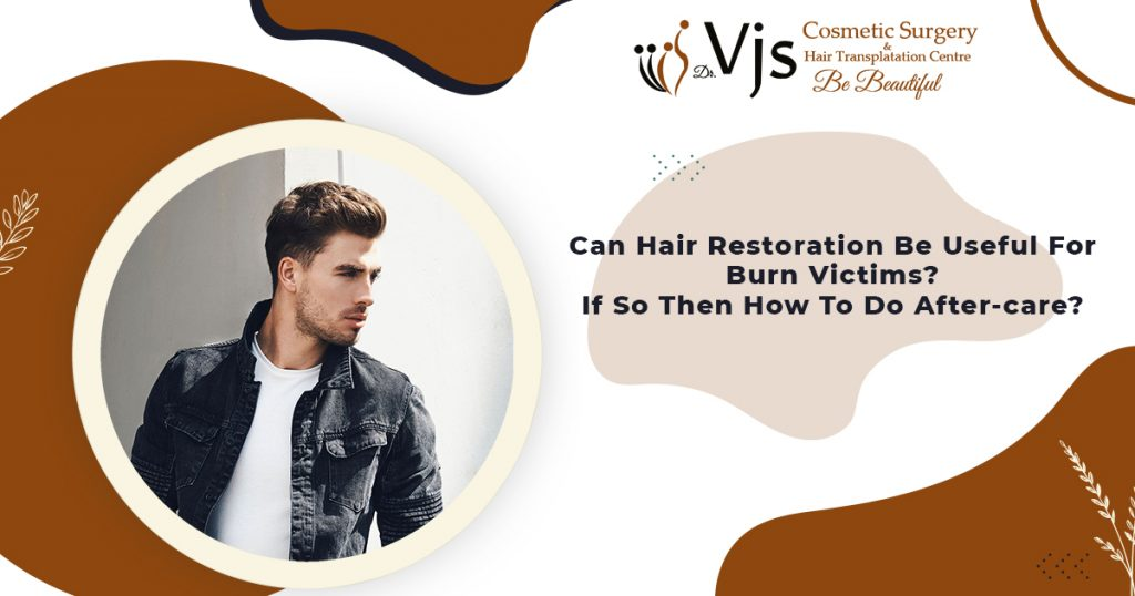 Can-Hair-Restoration-Be-Useful-For-Burn-Victims