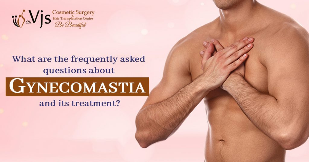 What-are-the-frequently-asked-questions-about-Gynecomastia-and-its-treatment