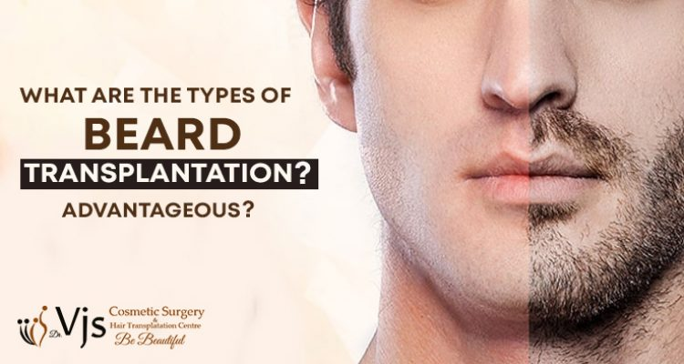 What are the types of beard transplantation? Why is beard transplant advantageous?