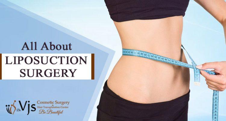 Liposuction Surgery: Diagnostic criteria, Mechanism, kinds & Preparation