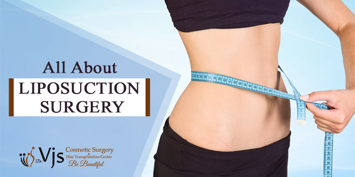 All about Liposuction surgery