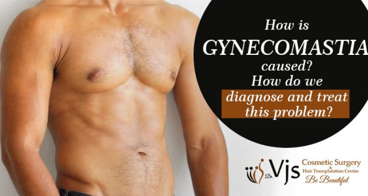 How is gynecomastia caused? How do we diagnose and treat this problem?