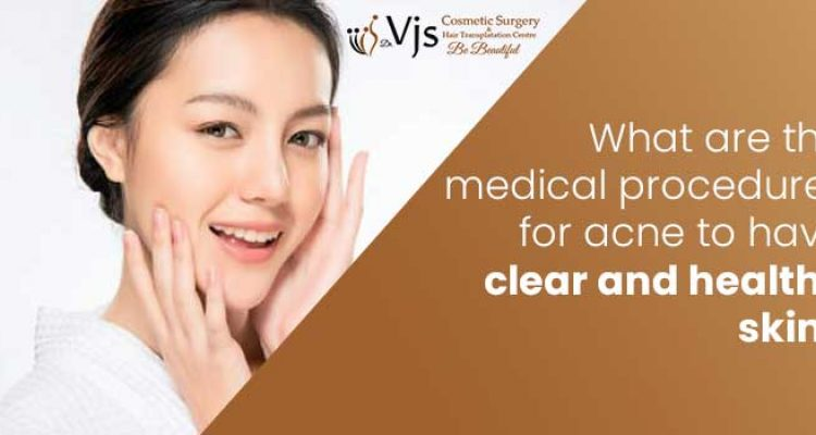 What are the medical procedures for acne to have clear and healthy skin?