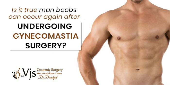 Is-it-true-man-boobs-can-occur-again-after-undergoing-gynecomastia-surgery54