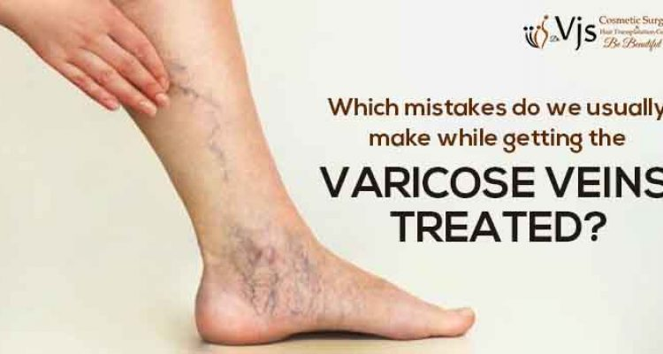 Which mistakes do we usually make while getting the varicose veins treated?